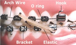 Orthodontic Terms - Pediatric Dentist and Orthodontics in Richboro, PA